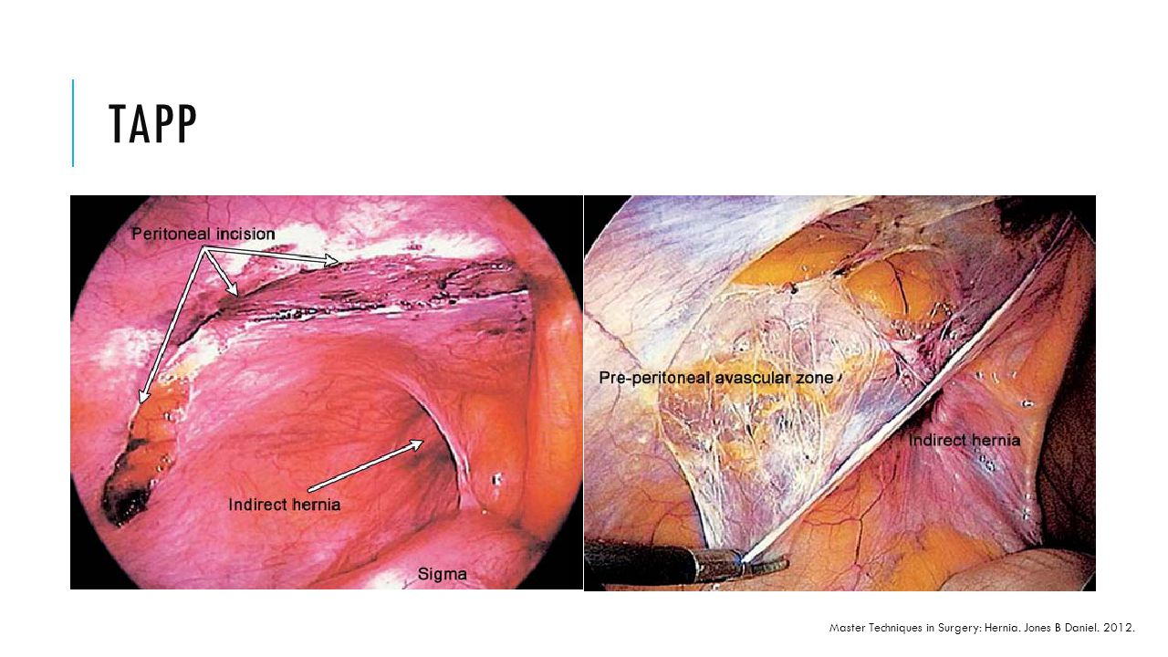 Updates On The Management Of Inguinal Hernia In Adults Ppt Download