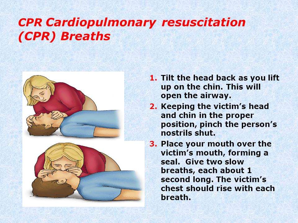 CPR Cardiopulmonary resuscitation (CPR) Breaths