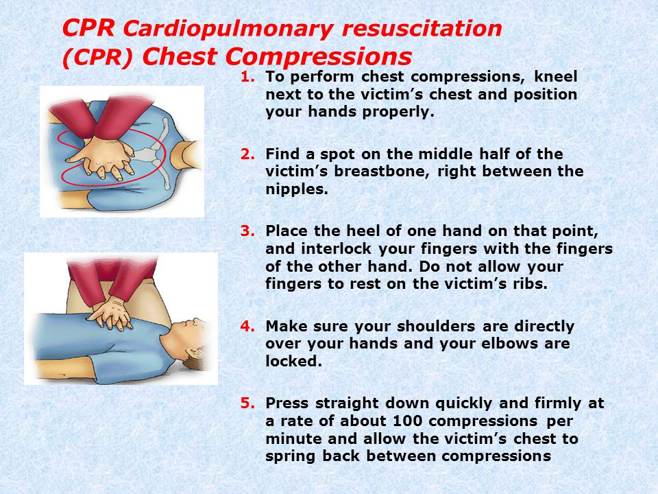 CPR Cardiopulmonary resuscitation (CPR) Chest Compressions