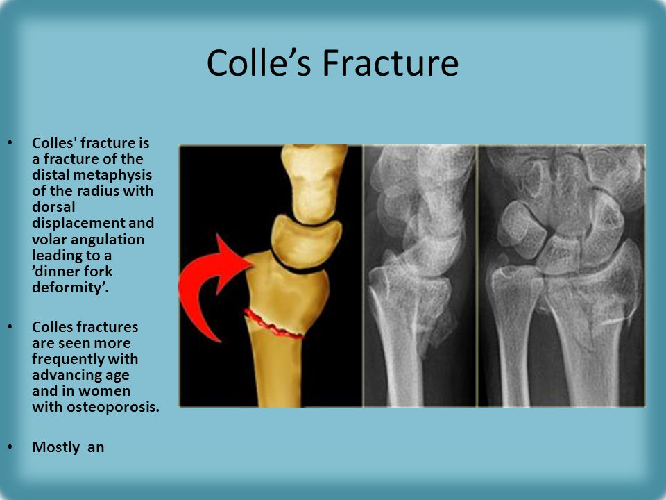 Radiology of Fracture Principles - ppt video online download