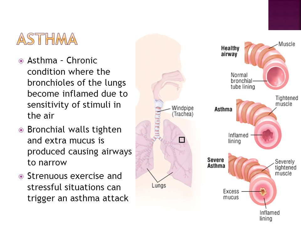 Asthma Asthma – Chronic condition where the bronchioles of the lungs become inflamed due to sensitivity of stimuli in the air.