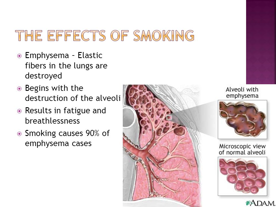 The effects of smoking Emphysema – Elastic fibers in the lungs are destroyed. Begins with the destruction of the alveoli.