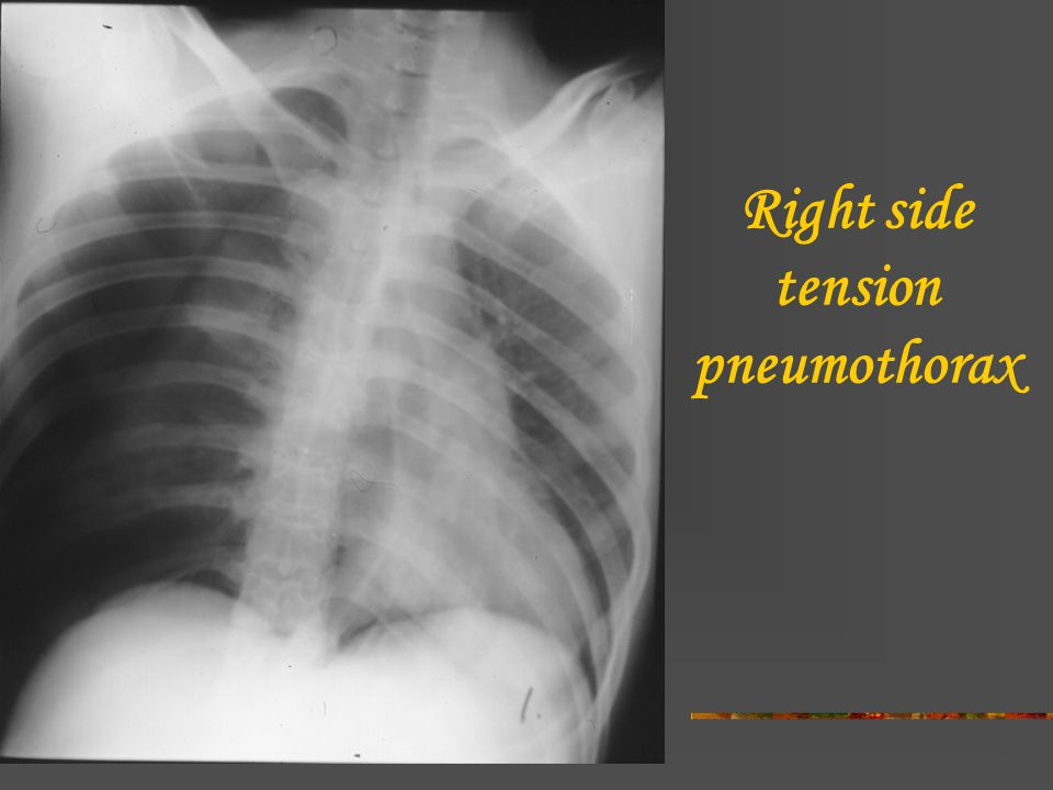 tension pneumothorax x ray - 960×720