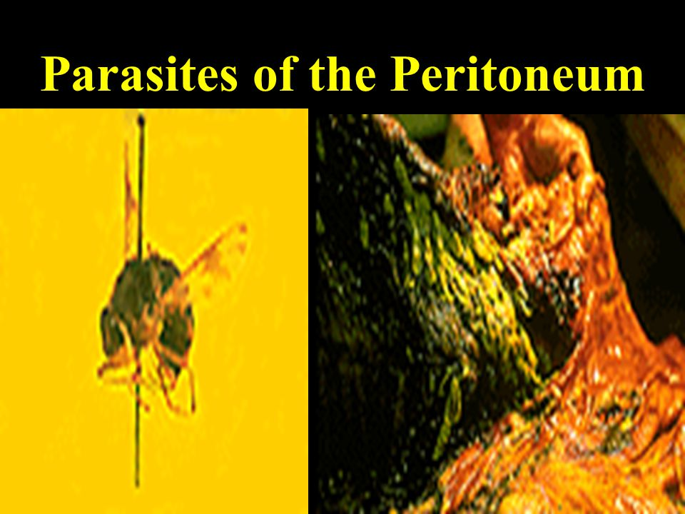 Parasites of the Peritoneum