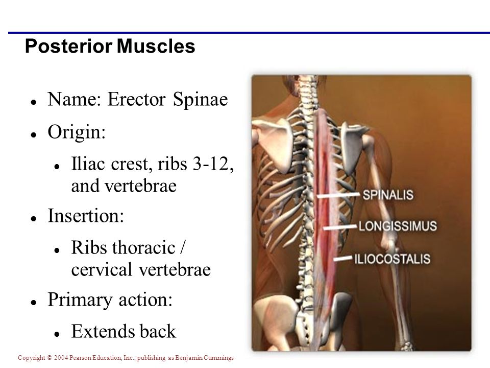 Name: Erector Spinae Origin: Insertion: Primary action: