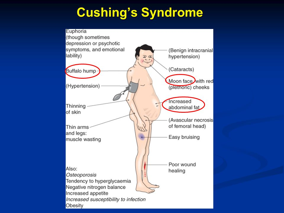 Cushing's Syndrome 35