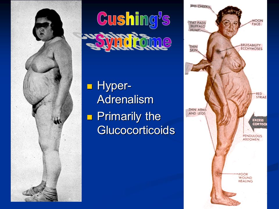 Cushing's Syndrome Hyper-Adrenalism Primarily the Glucocorticoids