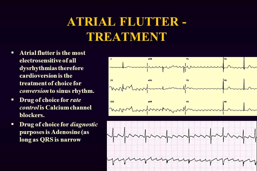 Images of Atrial Flutter Medications - #rock-cafe