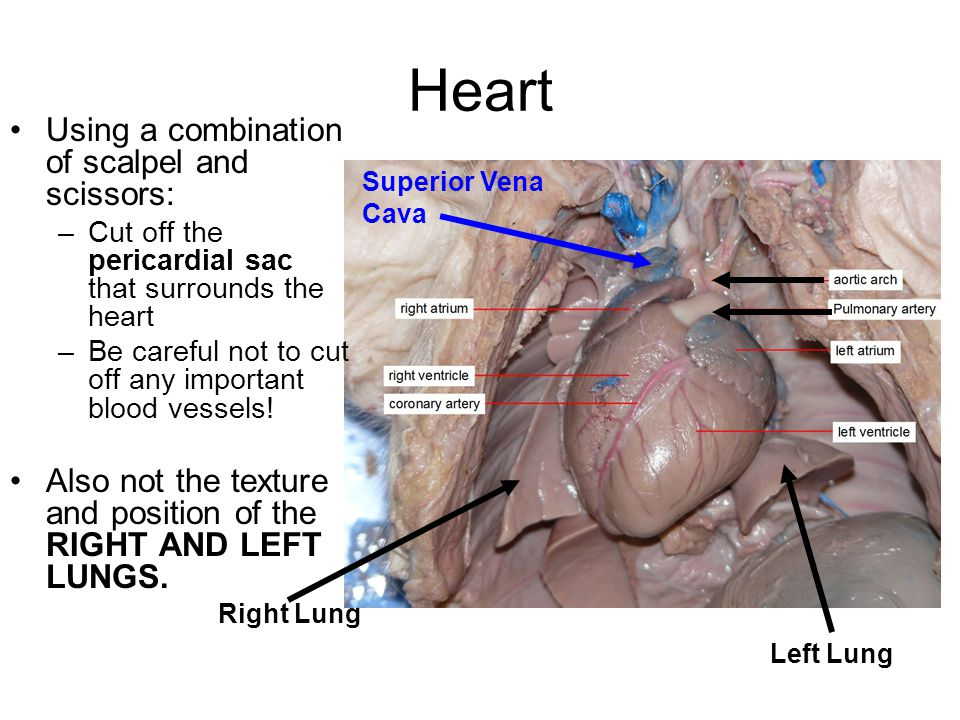 Fetal pig dissection work in groups of ppt video online download 14 heart ccuart Choice Image