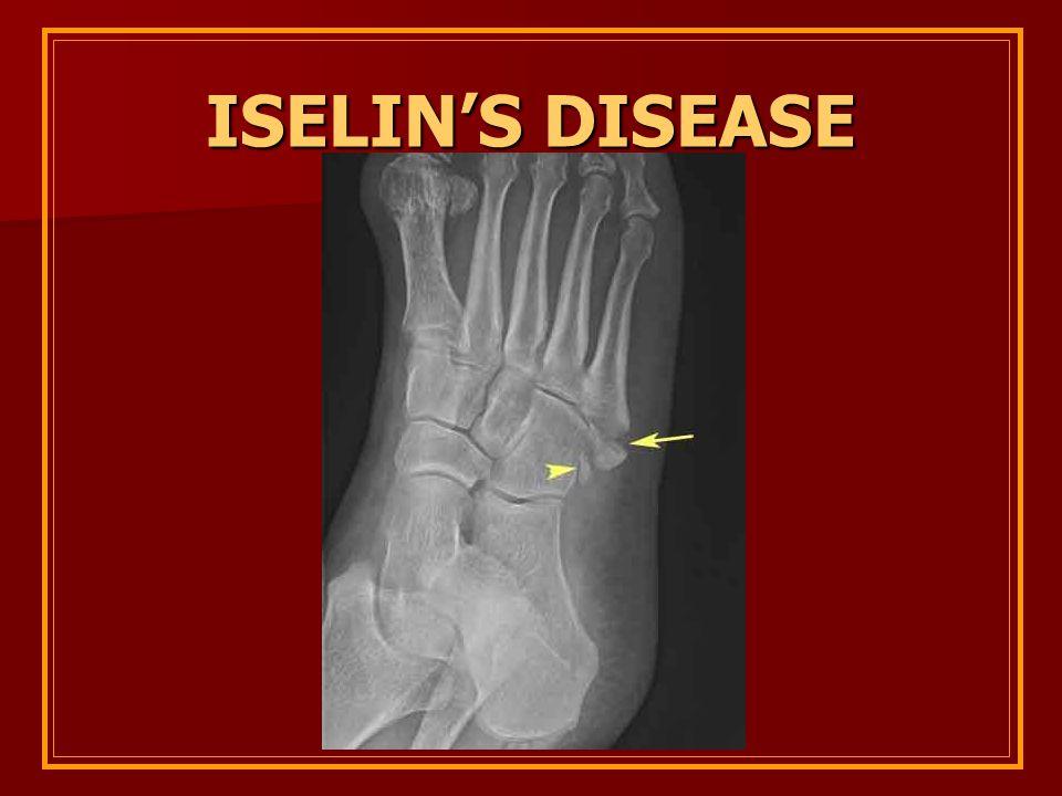 Iselin's disease
