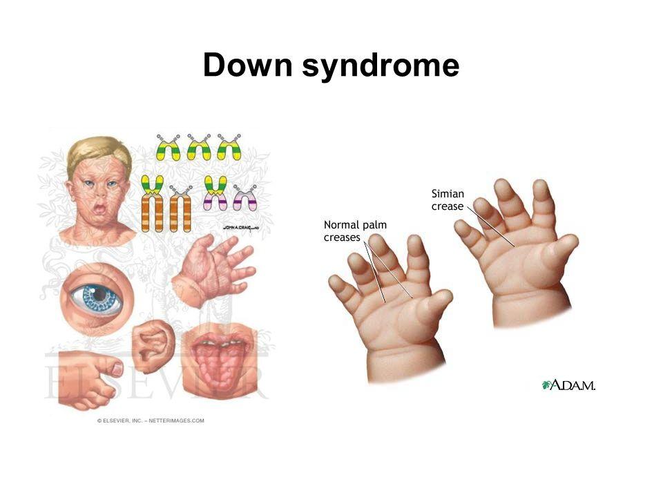 Chromosomal Anomalies - ppt download