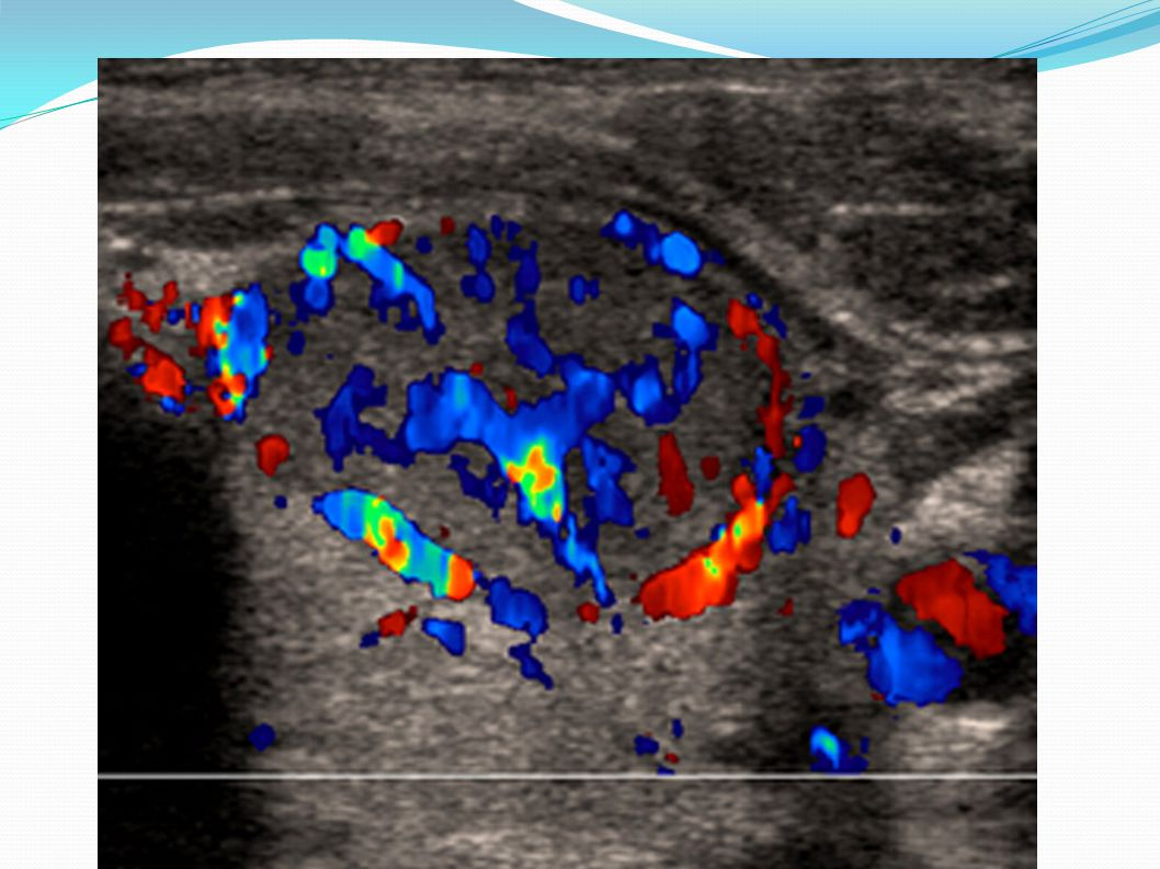 Addition of color Doppler mode shows marked internal vascularity, indicating increased likelihood that nodule is malignant.