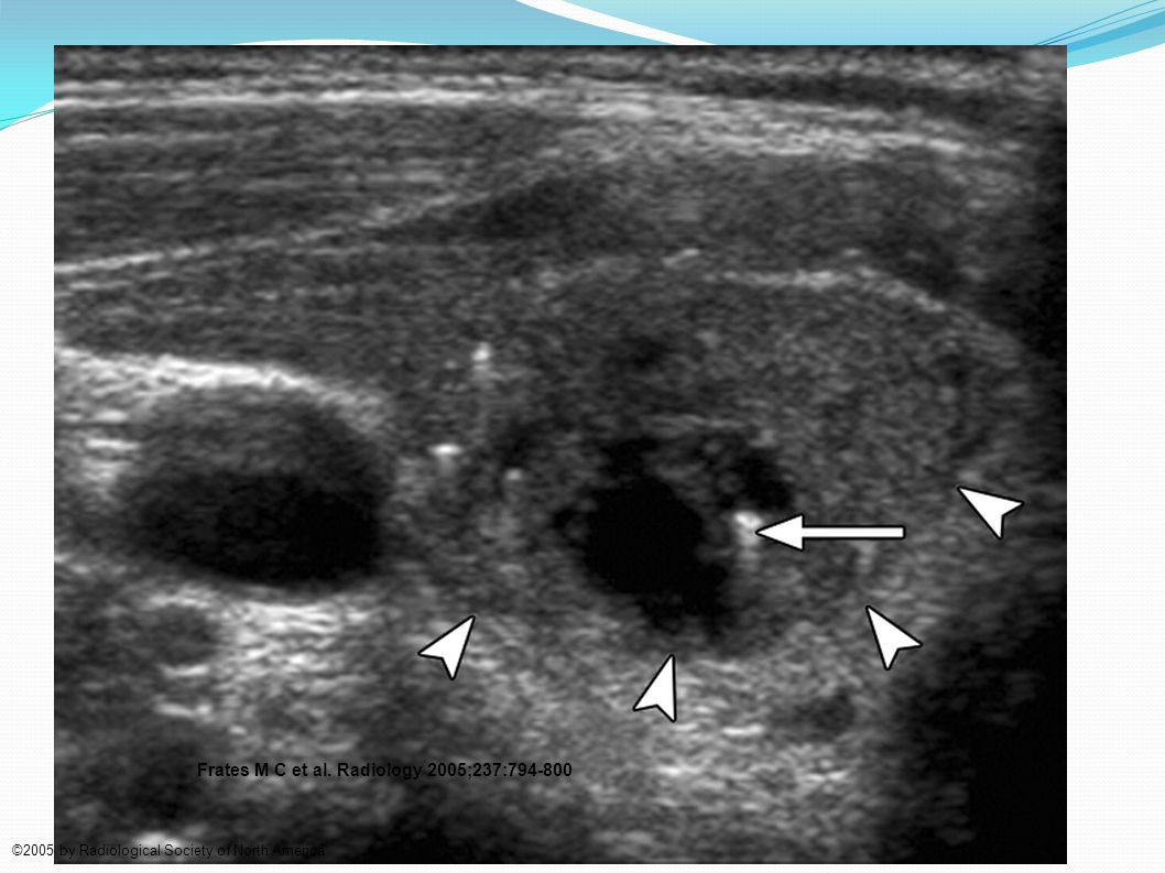 Punctate echogenicities in thyroid nodules.