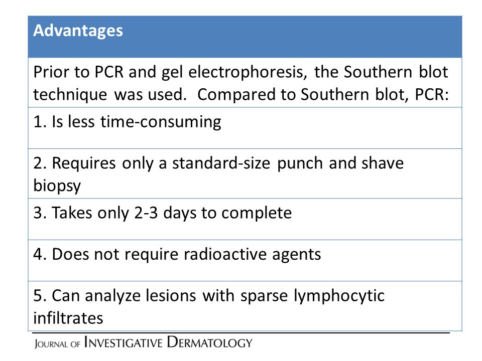 literature review for denaturing gradient gel electrophoresis Region denaturing gradient gel electrophoresis (isr dgge) were used for the molecular typing of campylobacter jejuni isolates obtained during different stages of commercial broiler production and processing.
