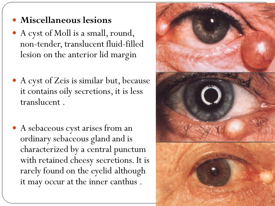 Disorders of the Eyelids - ppt video online download