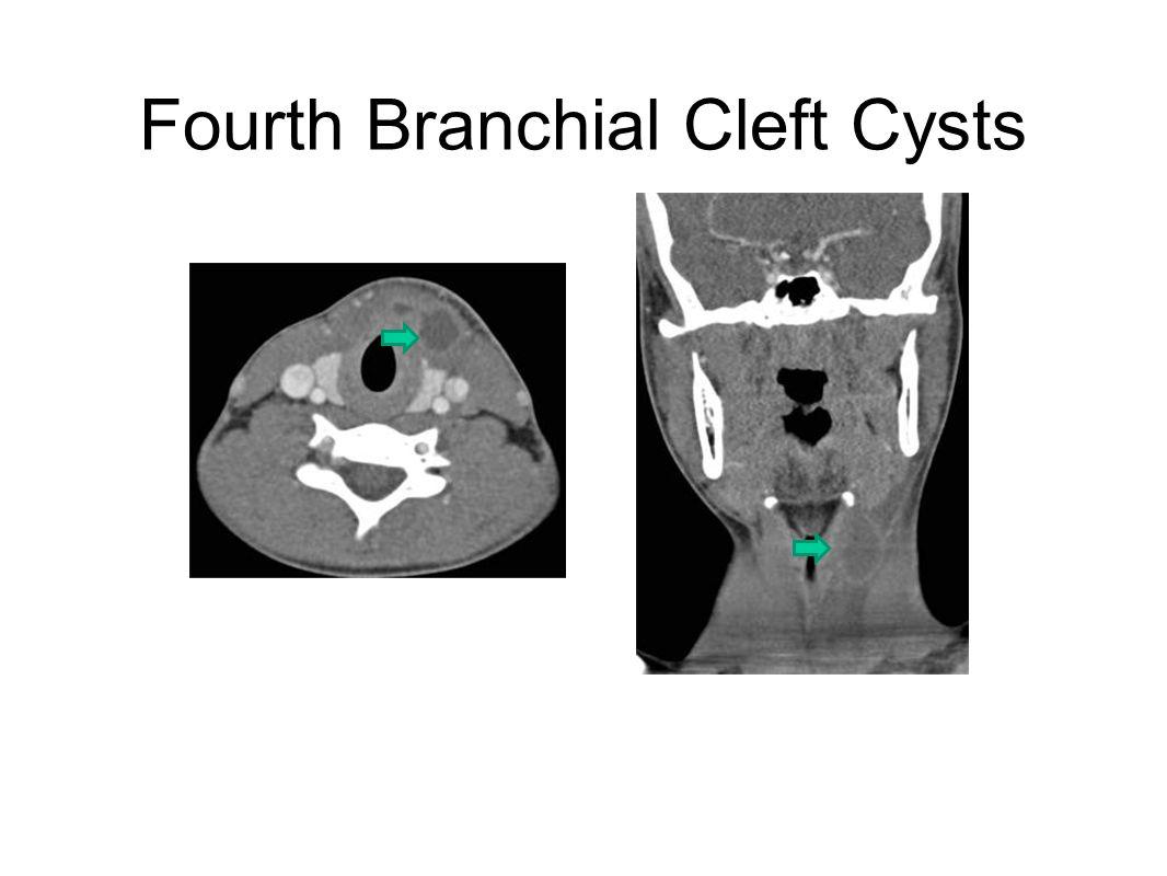 Dept  of Radiology, UNC Chapel Hill - ppt video online download