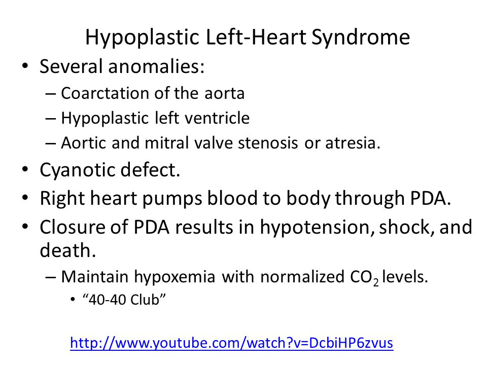 Hypoplastic Left-Heart Syndrome