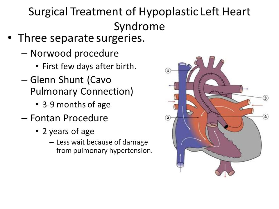 Surgical Treatment of Hypoplastic Left Heart Syndrome