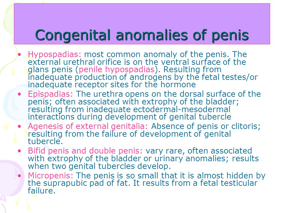Anomalii sexuale