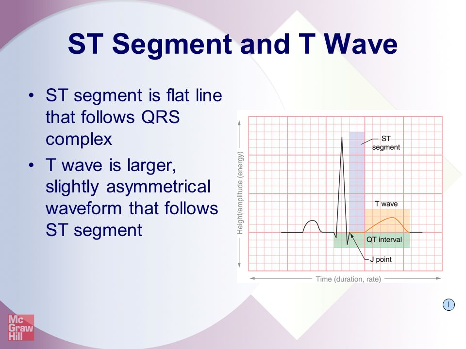 ST Segment and T Wave ST segment is flat line that follows QRS complex