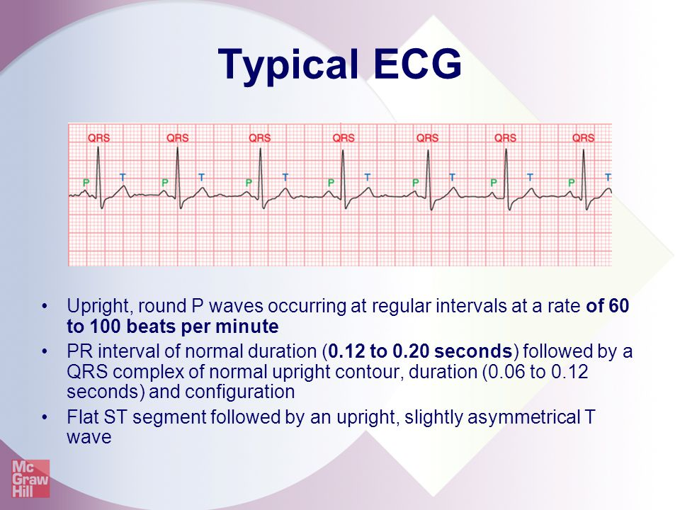 Typical ECG Upright, round P waves occurring at regular intervals at a rate of 60 to 100 beats per minute.