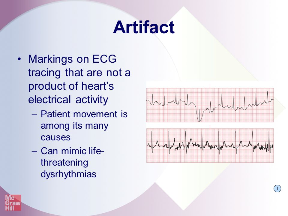 Artifact Markings on ECG tracing that are not a product of heart's electrical activity. Patient movement is among its many causes.