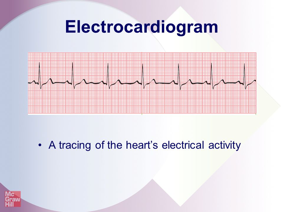 A tracing of the heart's electrical activity