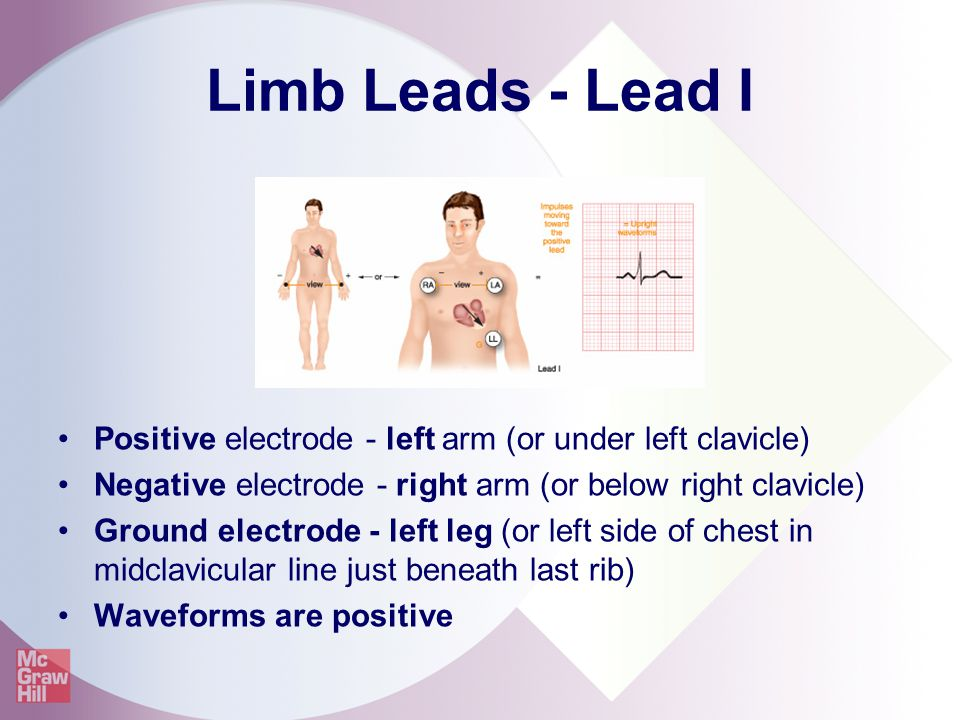 Limb Leads - Lead I Positive electrode - left arm (or under left clavicle) Negative electrode - right arm (or below right clavicle)