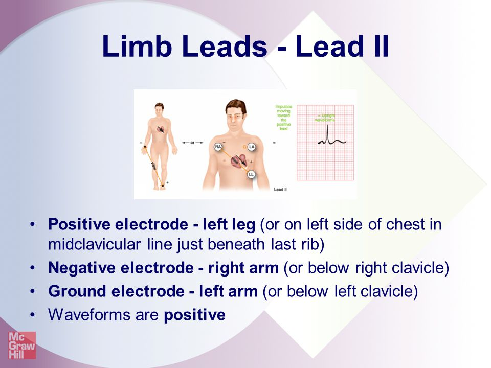 Limb Leads - Lead II Positive electrode - left leg (or on left side of chest in midclavicular line just beneath last rib)