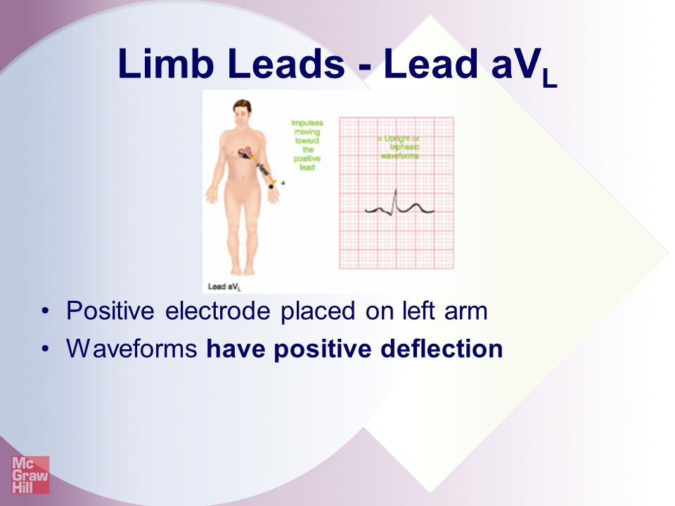 Limb Leads - Lead aVL Positive electrode placed on left arm