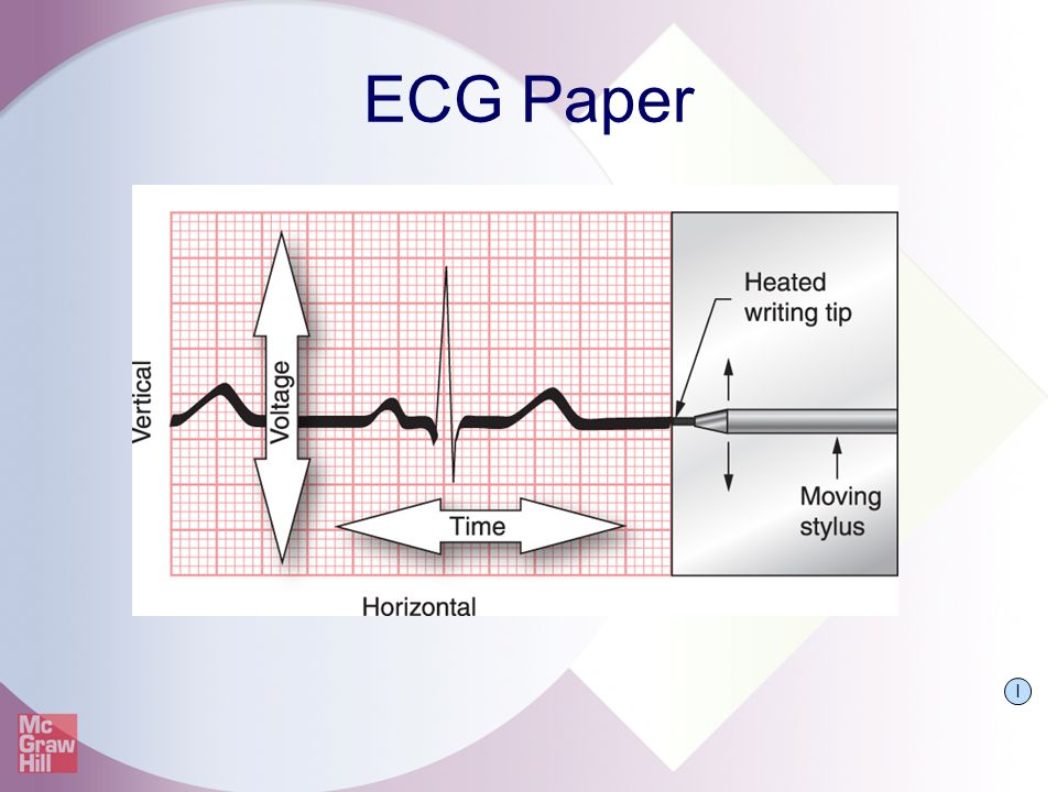 ECG Paper Grid layout on ECG paper consists of horizontal and vertical lines.