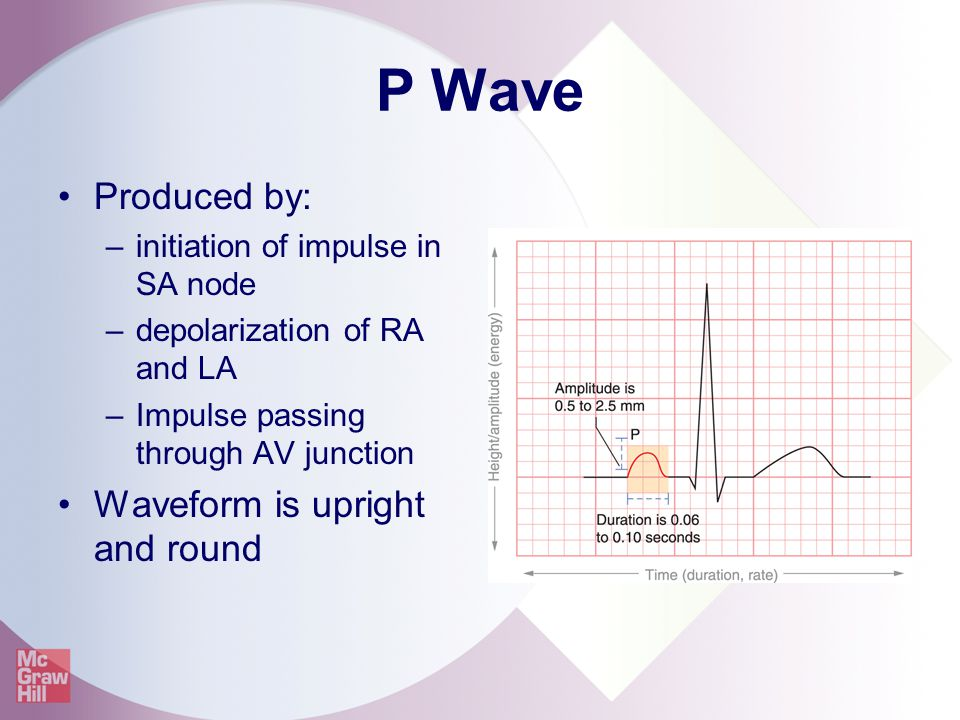 P Wave Produced by: Waveform is upright and round
