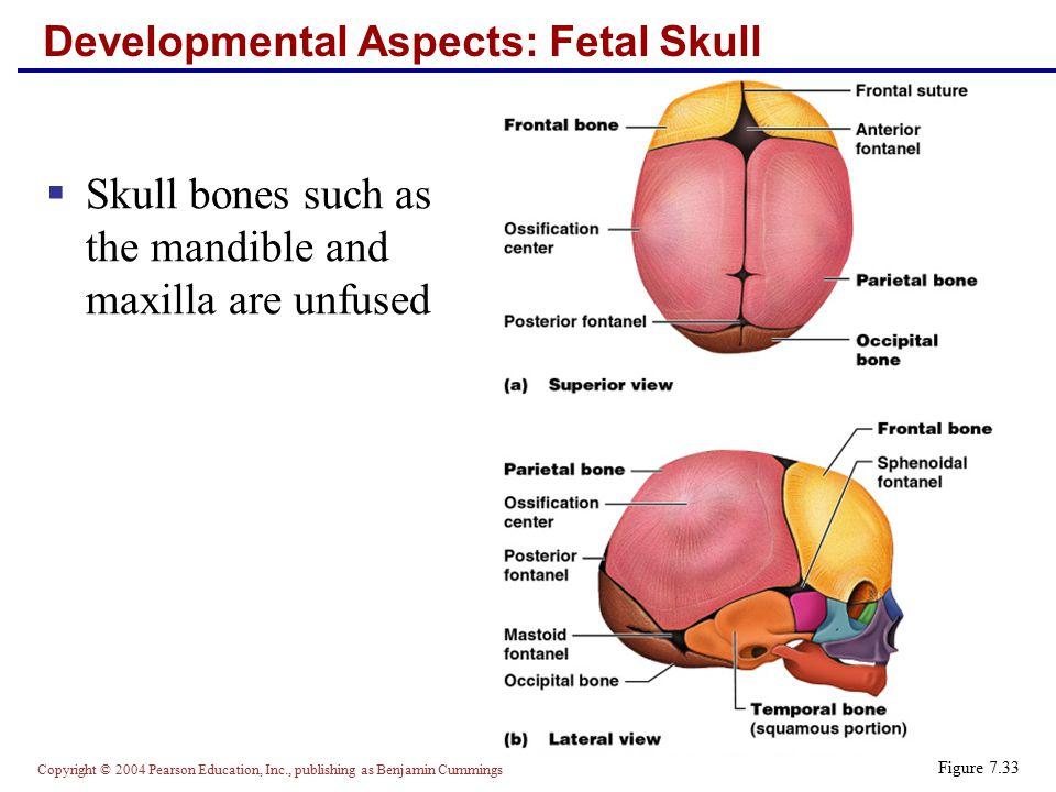 Lujo Anatomy Of The Fetal Skull Fotos - Imágenes de Anatomía Humana ...