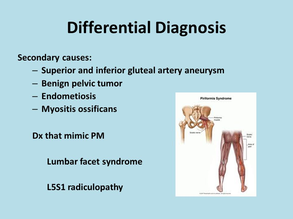 diagnosis and treatment of pelvic venous syndromes learn