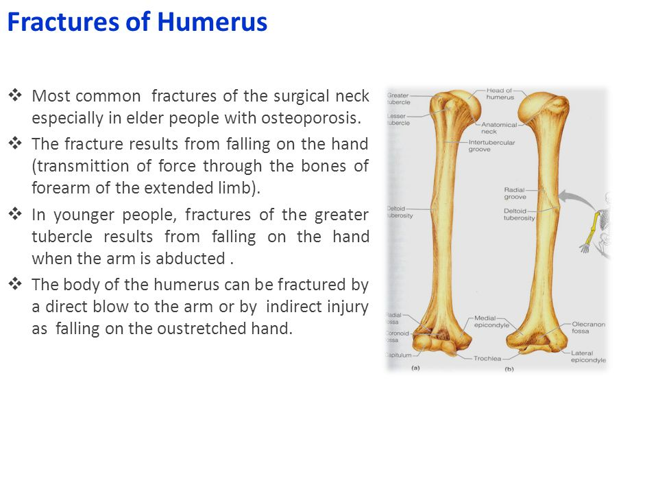 Fractures of Humerus Most common fractures of the surgical neck especially in elder people with osteoporosis.