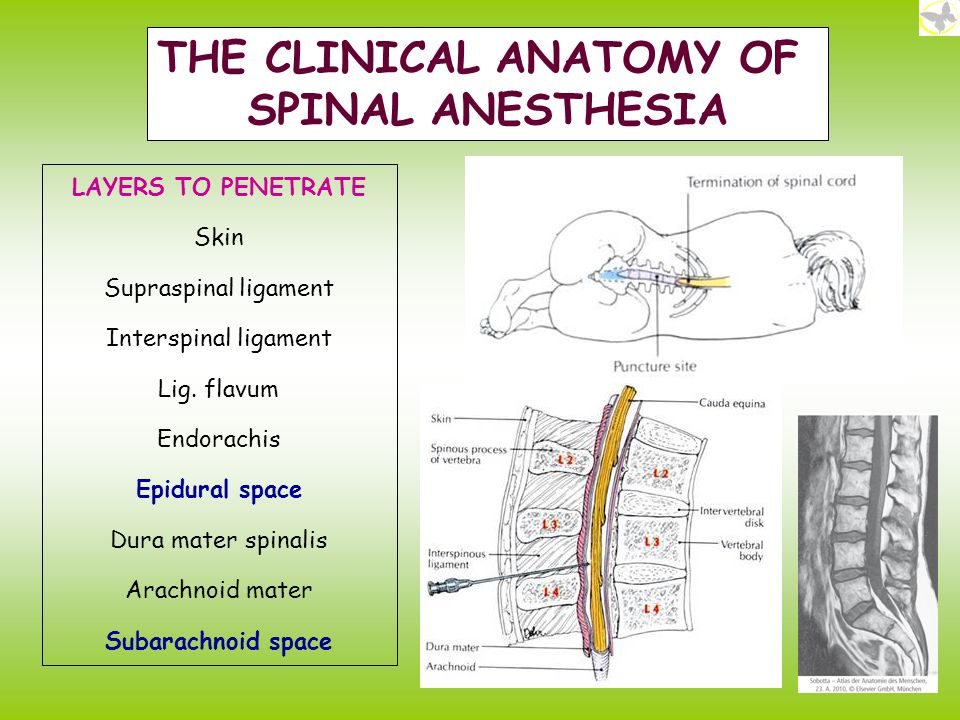 GROSS ANATOMY OF THE SPINAL CORD - ppt video online download