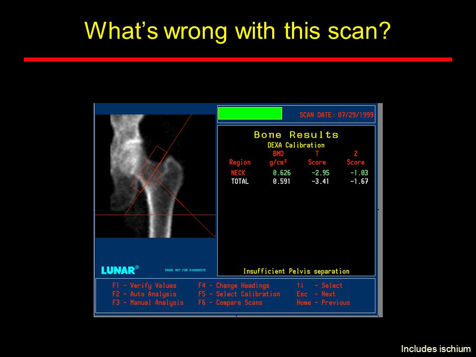 can dexa scans be wrong
