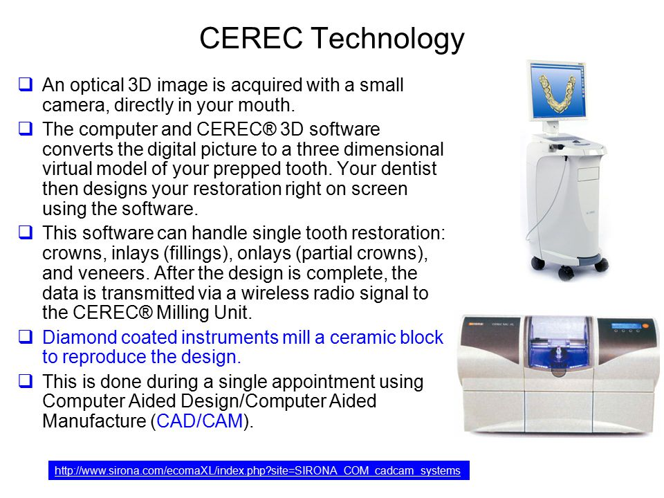 CEREC Technology An optical 3D image is acquired with a small camera, directly in your mouth.