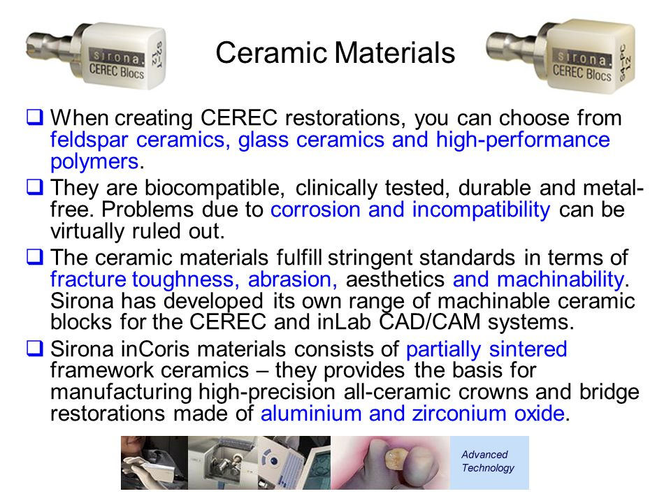 Ceramic Materials When creating CEREC restorations, you can choose from feldspar ceramics, glass ceramics and high-performance polymers.