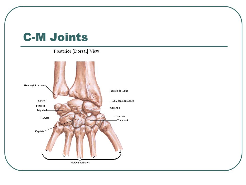 Wrist and Hand. - ppt video online download