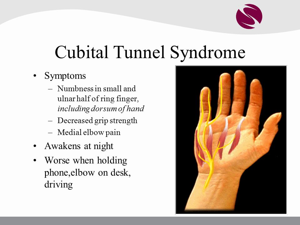 Common Elbow, Wrist, and Hand Problems - ppt video online download
