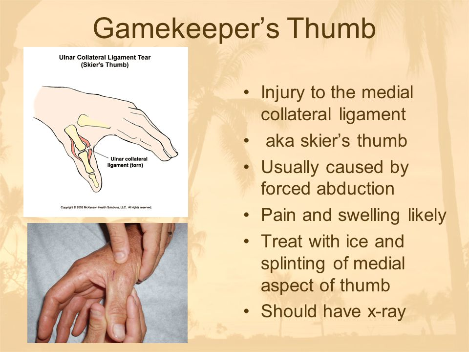 Gamekeeper's Thumb Injury to the medial collateral ligament