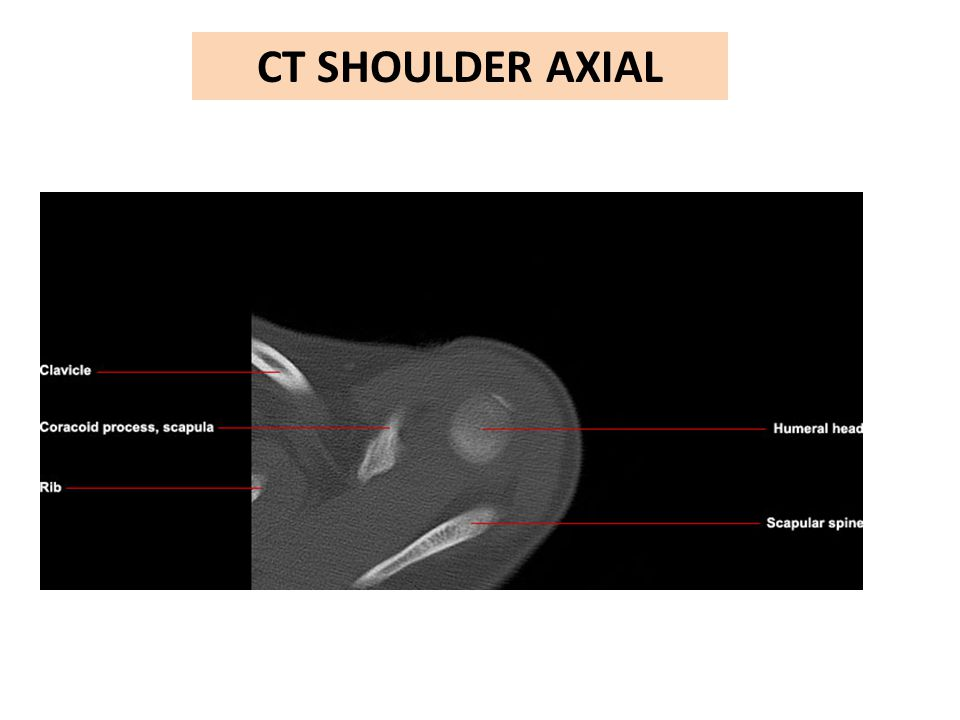 Ct Shoulder Axial Ppt Video Online Download