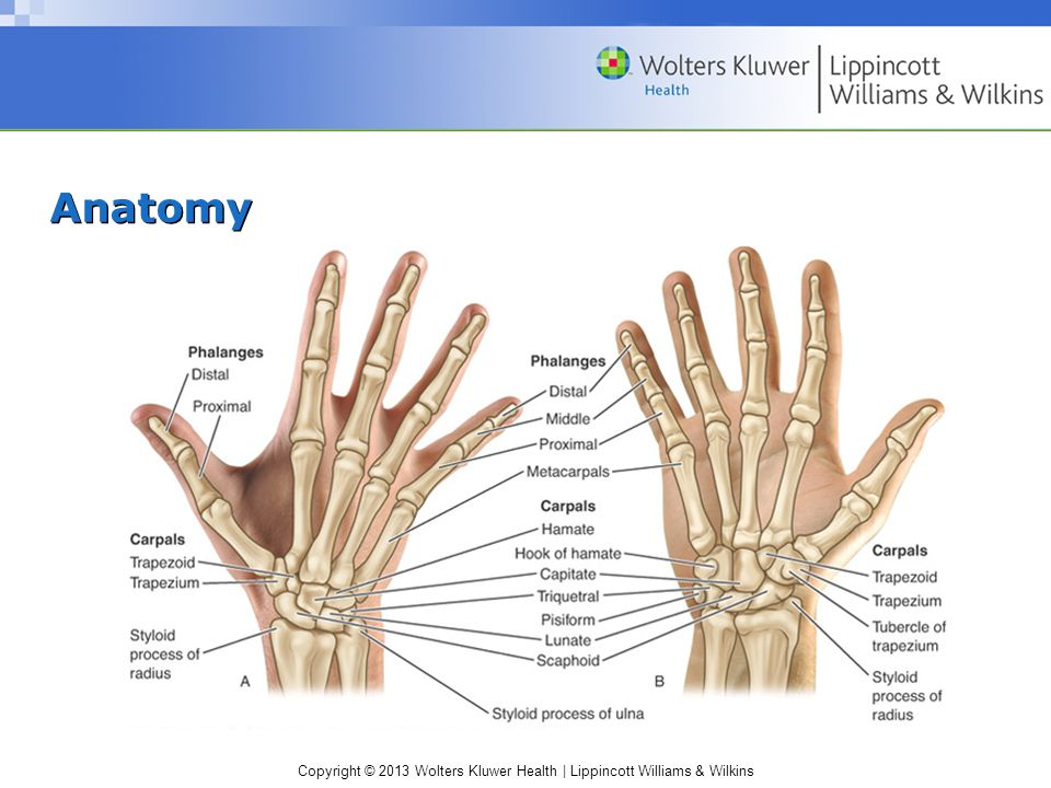 Wrist and Hand Conditions - ppt download
