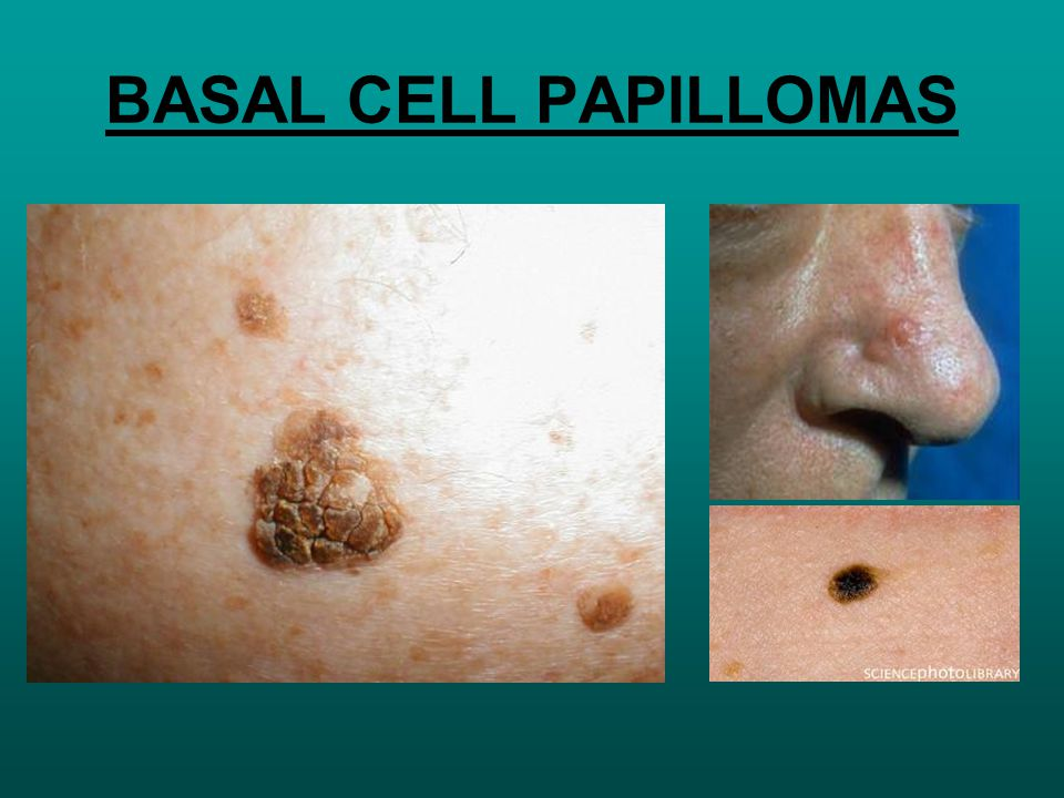 hyperkeratotic basal cell papilloma