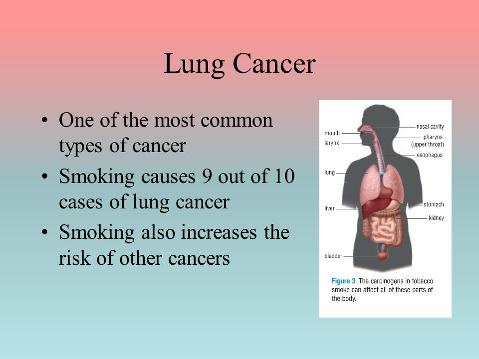 Lung Cancer One of the most common types of cancer