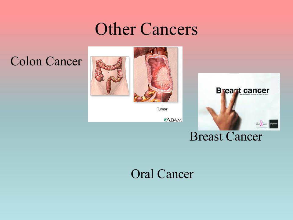 Other Cancers Colon Cancer Breast Cancer Oral Cancer