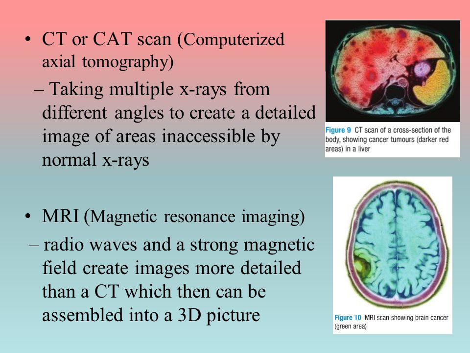 CT or CAT scan (Computerized axial tomography)