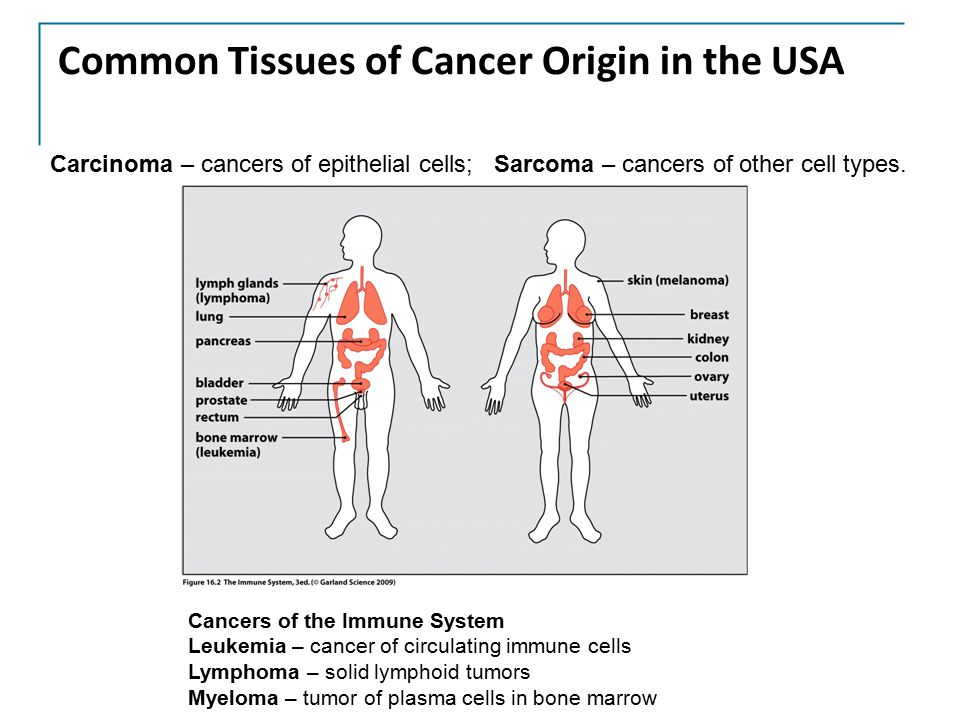 Common Tissues of Cancer Origin in the USA