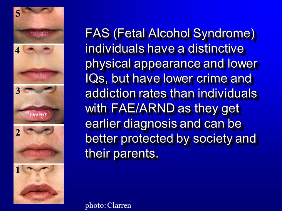 FAS (Fetal Alcohol Syndrome) individuals have a distinctive physical appearance and lower IQs, but have lower crime and addiction rates than individuals with FAE/ARND as they get earlier diagnosis and can be better protected by society and their parents.